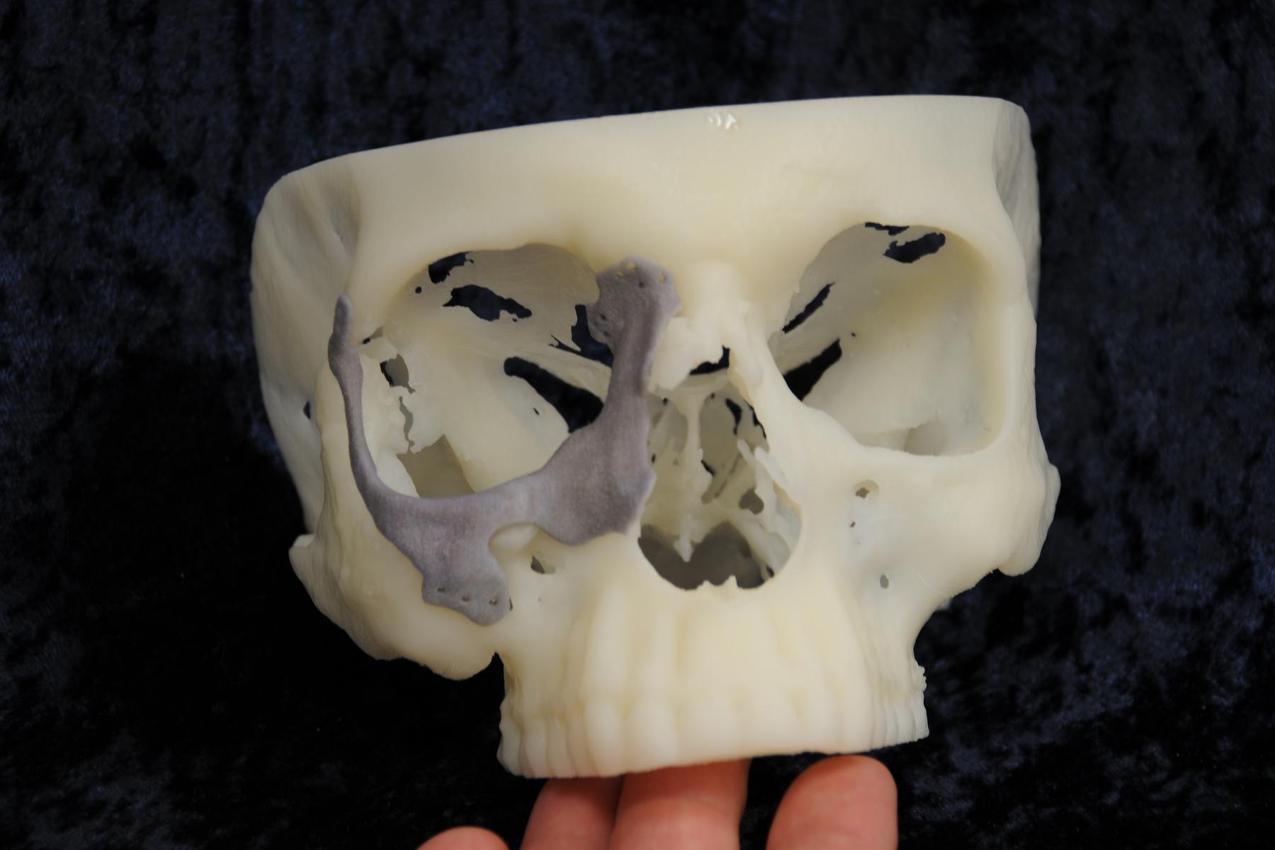 facial implant2